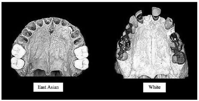 Brain size, IQ, and racial-group differences - Evidence from musculoskeletal traits - figure 5