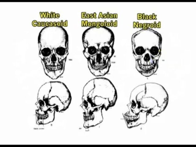 racialdifferencesinskullshapes